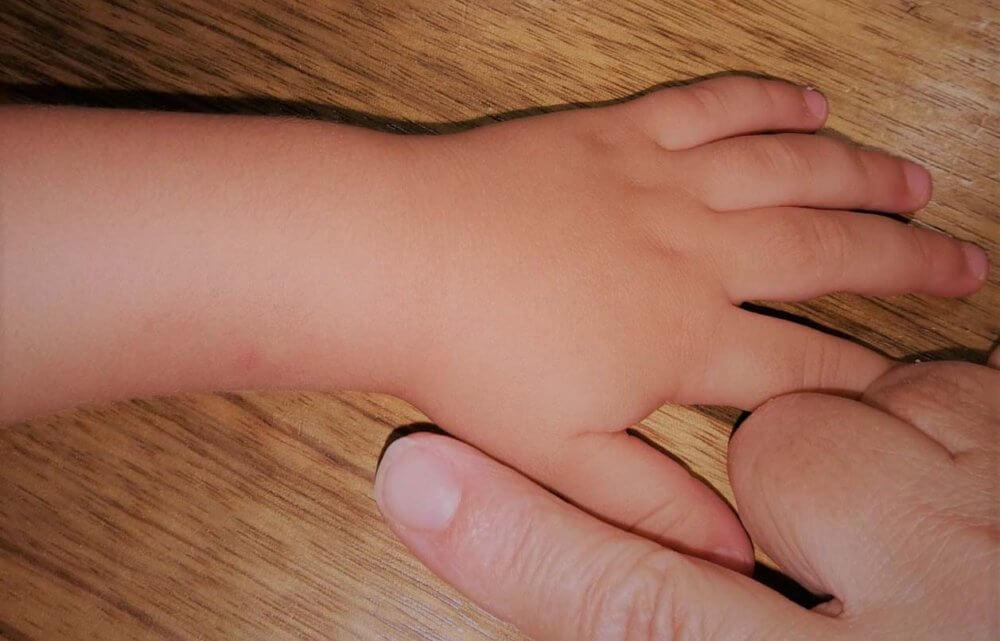 הורים נעצרו בחשד לתקיפת בתם בת ה-3 חודשים