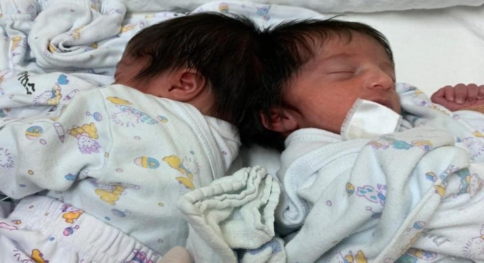 לראשונה בישראל: ניתוח נדיר להפרדת תאומות המחוברות בראשן התבצע בסורוקה
